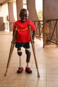 Santigi, who has prosthetic legs