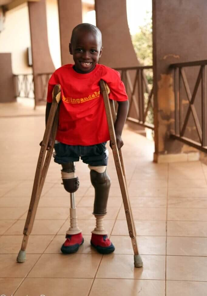 Santigi, who has prosthetic legs
